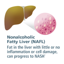 NAFLD non alcoholic fatty liver